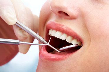 Understanding Dental Plans
